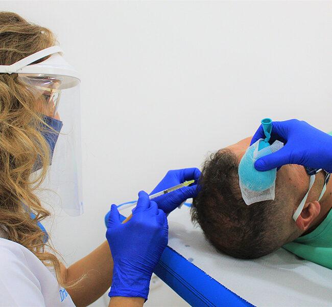 tratamiento PRP